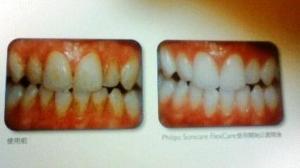 より自然な白い歯へ
